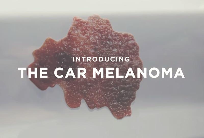 The Car Meranoma